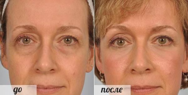 фото после операции по блефаропластики женщина после 40 лет