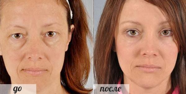 фото до и после операции по удалению мешков под глазами