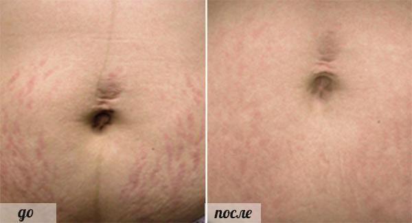фото до и после удаления растяжек лазером