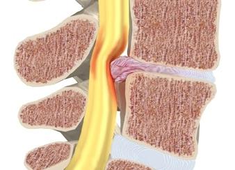 Лечение ишиаса и компрессии седалищного нерва
