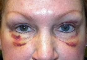 отеки под глазами после операции Трансконъюктивальная блефаропластика