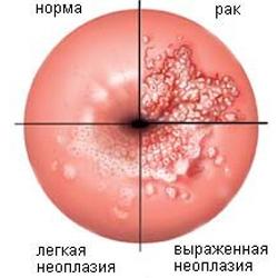 Современное лечение эрозии шейки матки(эктопии) радиоволнами