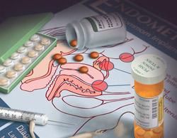 Симптомы и особенности лечение эндометриоза при беременности
