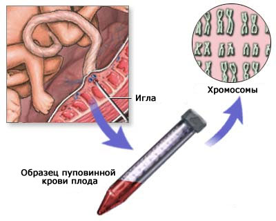 Кордоцентез при беременности
