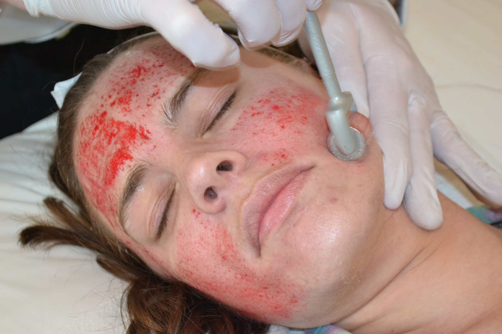 косметолог работает с медицинским мезороллером