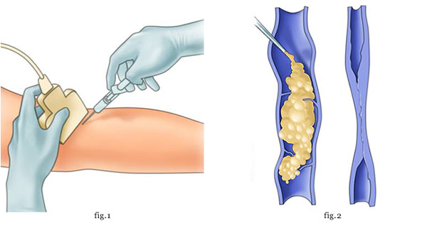 Неоперативные методы лечения варикозной болезни