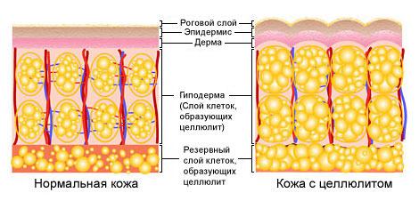 схема целлюлита