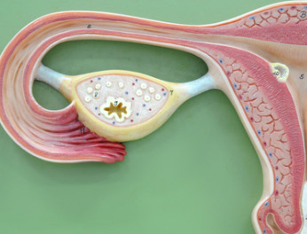 развитие кисты в яичнике