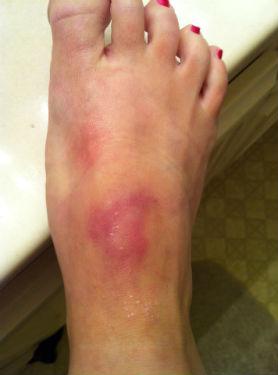 pole-dancing-bruises[1]