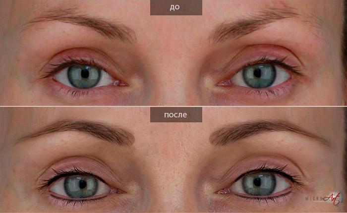 до и после татуажа глаз
