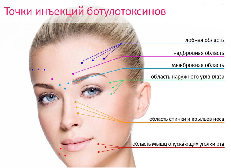точки инекции мезоботокса